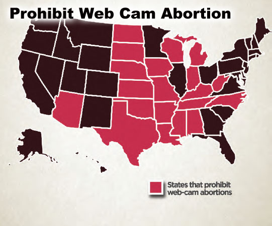 Webcam abortions